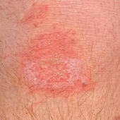 The wound on his leg — Stock Photo