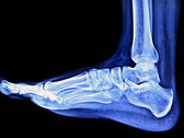 Foot Xray — Stock Photo