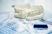 Orthodontic molds — Stock Photo