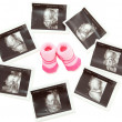 Group of 3D 4D Ultrasound images around a pair of pink baby boot — Stock Photo #28933431