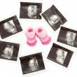 Group of 3D 4D Ultrasound images around a pair of pink baby boot — Stock Photo