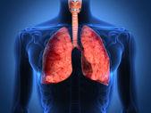 黑色背景上肺部的 x-射线的详细信息 — 图库照片