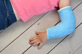 Child with arm cast — Stock Photo