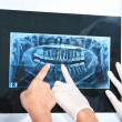 Examining teeth X Ray — Foto Stock