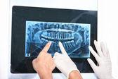 Examen des dents x-ray — Photo