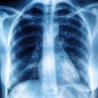 Chest X-ray image - Photo