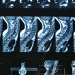 Stock Photo: MRI C-spine