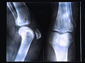 Knee X-ray — Stock Photo