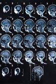 MRI Brain Scan — Stock Photo