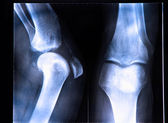 X-Ray image if the human knee — Stock Photo