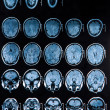 Mri Brain Scan - Stock Photo