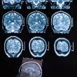 mri brain scan — Stock Photo