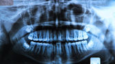 Panoramic dental x-ray — Stock Photo