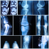 Knee medical exam: X-ray and MRI scan — Stock Photo