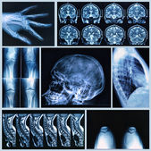 Radiography of Human Bones — Stock Photo