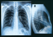 Chest X-ray Image — Stock Photo
