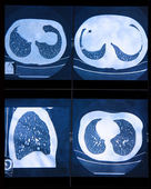 MRI scan of the human Lungs  — Foto Stock