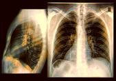 Chest X-ray Image — Stock Photo