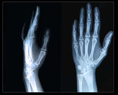Xray of Hand and fingers — Stock Photo