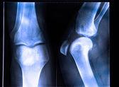Knee x-ray — Stock Photo