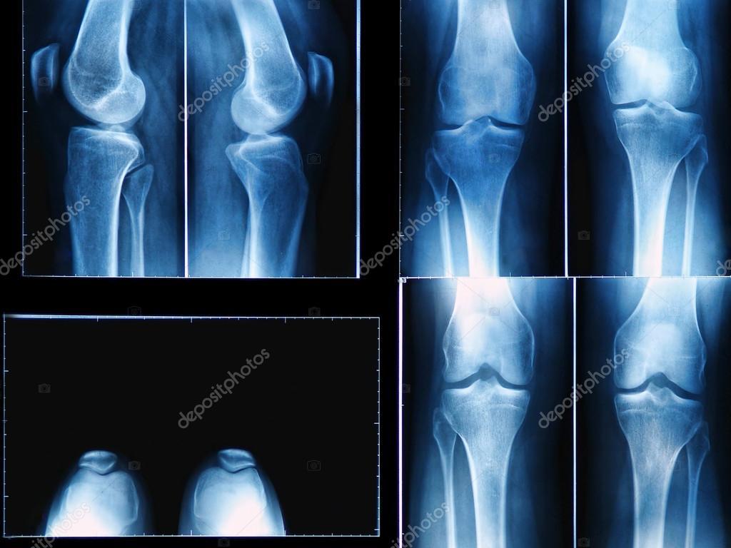 ревматоидный артрит коленного сустава рентген картина