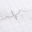 Electrocardiogram graph - Stock Photo