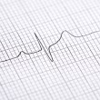 Electrocardiogram graph — Stock Photo #14709119