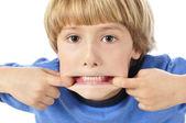 Teethy funny face — Stock Photo