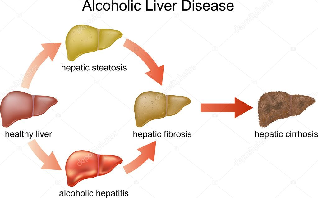 evolution of medical treatments of end stage liver diseases essay A lower resistance to the toxic effects of pesticides a  remain in the body and build up in the liver and  not dispense medical.