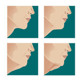 Neck lift — Stock Vector