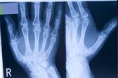 Radiografía de una mano — Foto de Stock