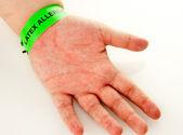 Latex Allergy Rash — Stock Photo