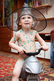 Little boy is sick with chickenpox on bicycle — Zdjęcie stockowe
