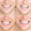 Stock Photo: Smile Face Mwith natural White Teeth Collage Dental Health Concept and Happiness Emotions