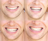 Smile Face Man with natural White Teeth Collage Dental Health Concept and Happiness Emotions — Stock Photo