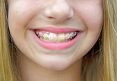 Caucasian girl with orthodontic braces — Stock Photo