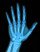 Hand x-ray — Stock Photo
