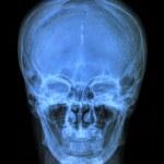 Human skull xray — Stock Photo
