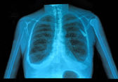 Xray lung — Stock Photo