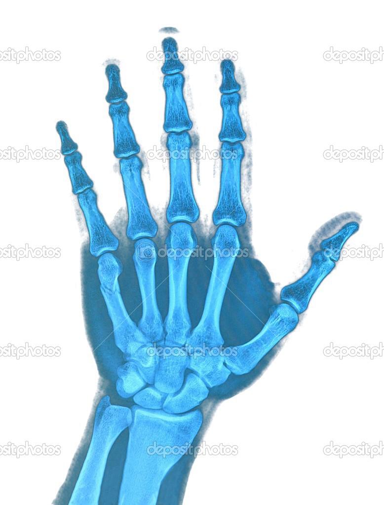Bolesti palce u ruky – de Quervainova nemoc