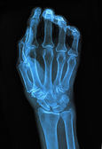 Xray of hand — Stock Photo
