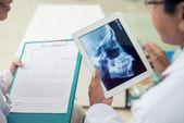 Skull x-ray — Stock Photo