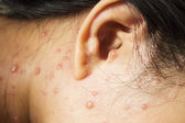 Chickenpox on face — Stock Photo