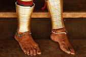 Feet of Long Necked Karen hiltribe Woman — Stock Photo