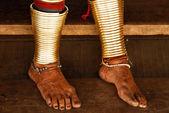 Feet of Long Necked Karen hiltribe Woman — Stock Photo
