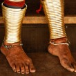 Feet of Long Necked Karen hiltribe Woman — Stock Photo #25372145