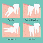 Wisdom Tooth — Stock Vector