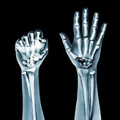 Dramatized x ray of two hands on black — Stock Photo