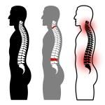 Постер, плакат: Human spine silhouettes