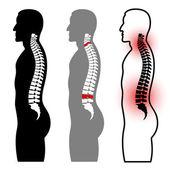 人体脊柱剪影 — 图库矢量图片